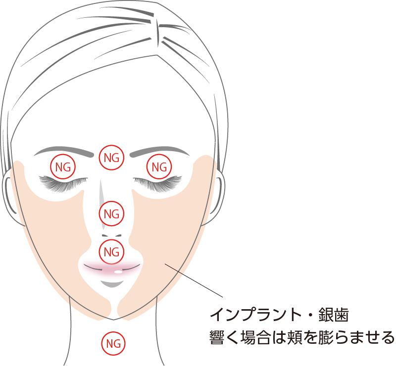 SMAS筋膜の引き締め